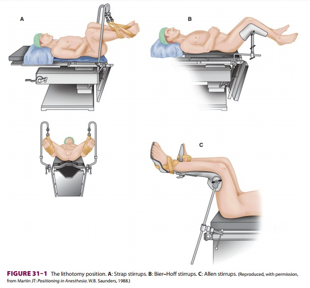 Anesthesia for Cystoscopy