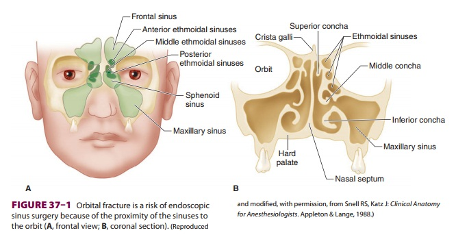 Anesthesia for Nasal & Sinus Surgery