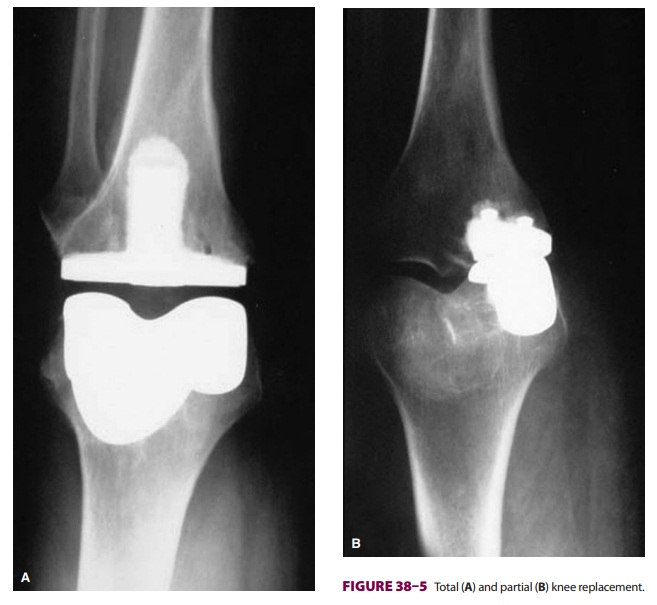 Anesthesia for Total Knee Replacement
