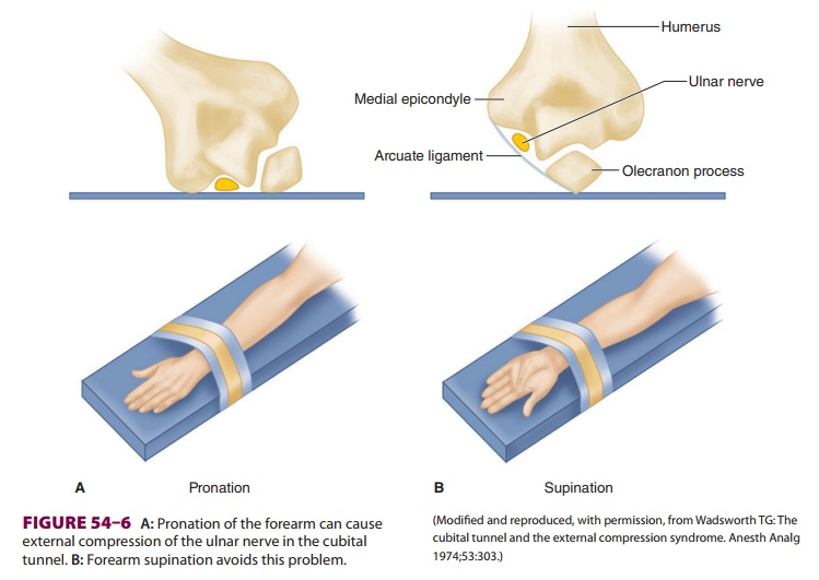Anesthetic Complications: Peripheral Nerve Injury