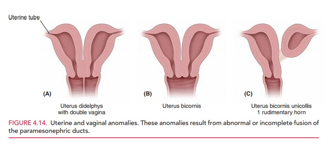 Anomalies of the Female Reproductive System