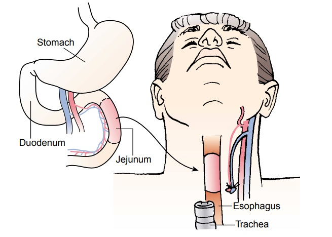 Benign Tumors and Cancer of the Esophagus