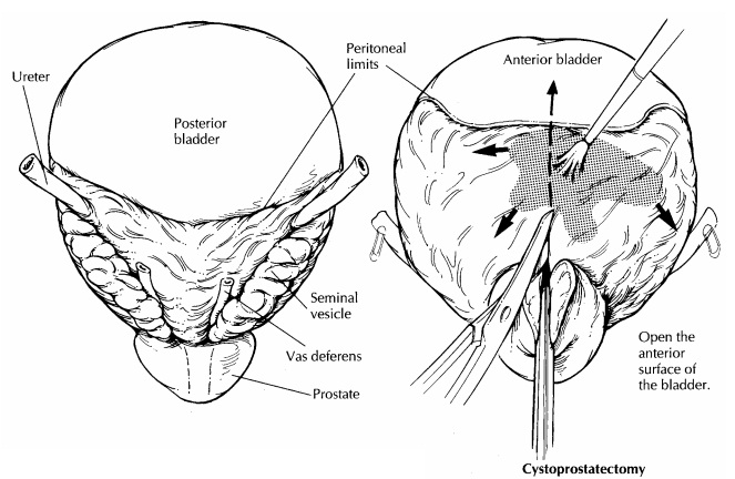 Bladder : Surgical Pathology Dissection