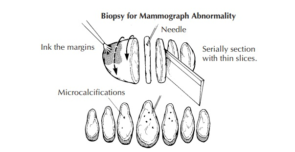 Breast Biopsies for Mammographic Abnormalities: Surgical Pathology Dissection
