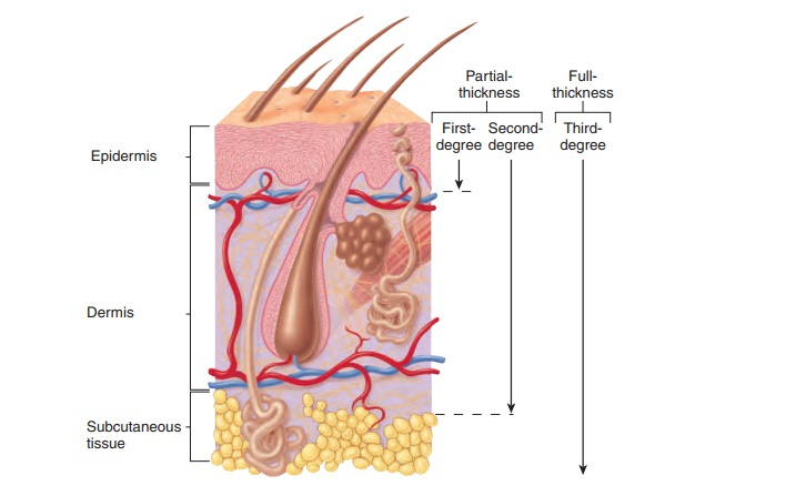 Burns: Classify burns on the basis of the amount of skin damage produced