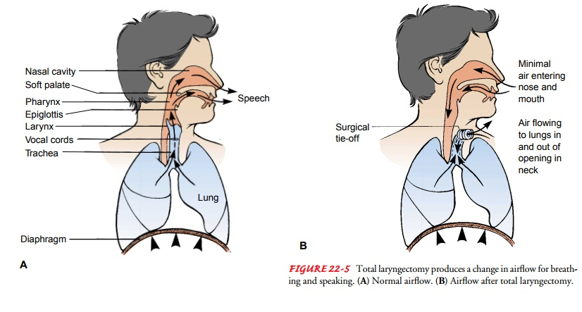 Cancer of the Larynx