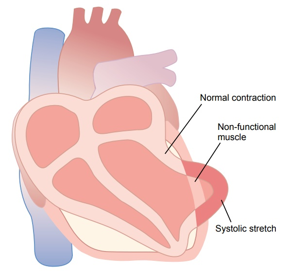 Causes of Death After Acute Coronary Occlusion