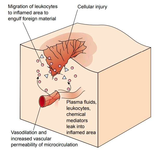 Cellular Response to Injury: Inflammation