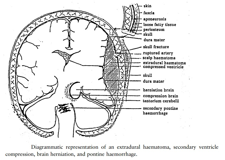 Classification of head injuries