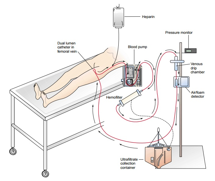 Continuous Renal Replacement Therapies - Dialysis