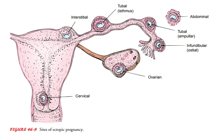 Ectopic Pregnancy - Management of Normal and Altered Female Reproductive Function