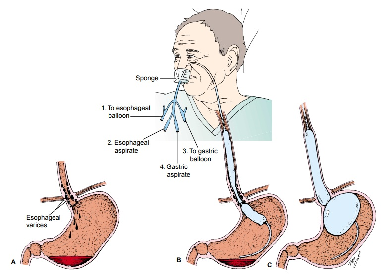 Esophageal Varices - Hepatic Dysfunction
