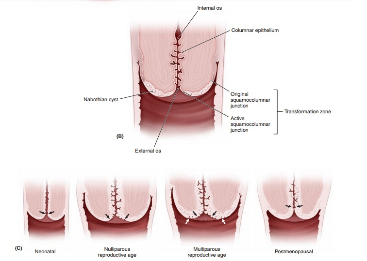 Etiology of Cervical Intraepithelial Neoplasia