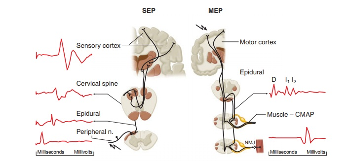 Evoked Potentials - Neurological System Monitors