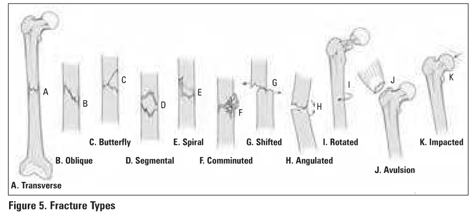 an analysis of the descriptions of bone fractures Reduction of the fractured bone should be attempted first in case of absent peripheral pulses, altered sensation or change of the skin color open fractures require vigorous irrigation with saline solution followed by surgical debridement of necrotic tissues, tetanus prophylaxis, and intravenous antibiotics.