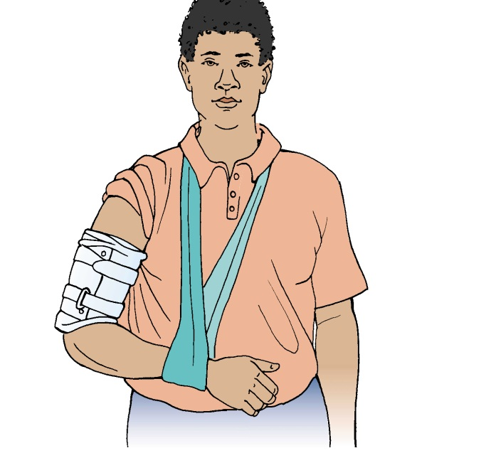 Humeral Shaft - Fracture