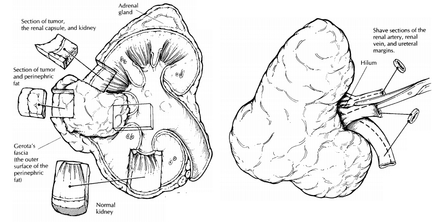 Kidney : Surgical Pathology Dissection