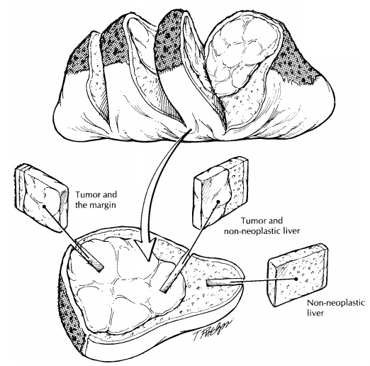 Liver: Surgical Pathology Dissection