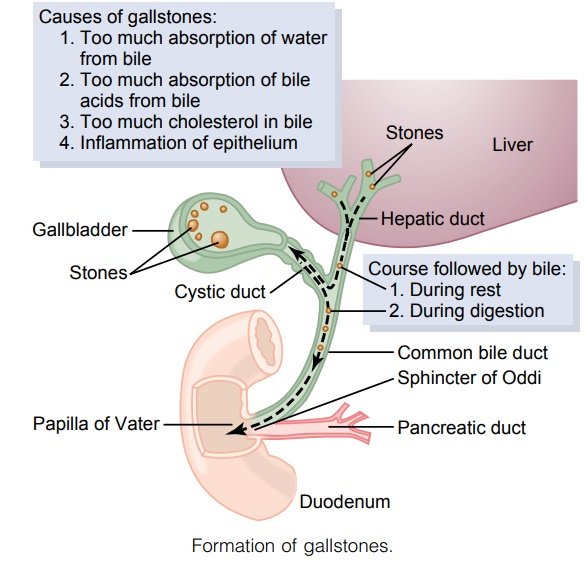 Liver Secretion of Cholesterol and Gallstone Formation