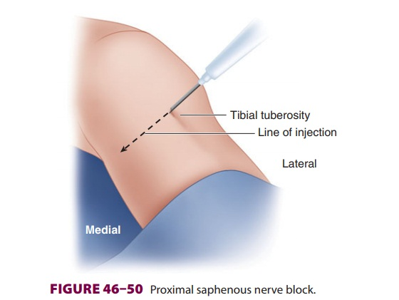 Lower Extremity Peripheral Nerve Blocks: Saphenous Nerve Block