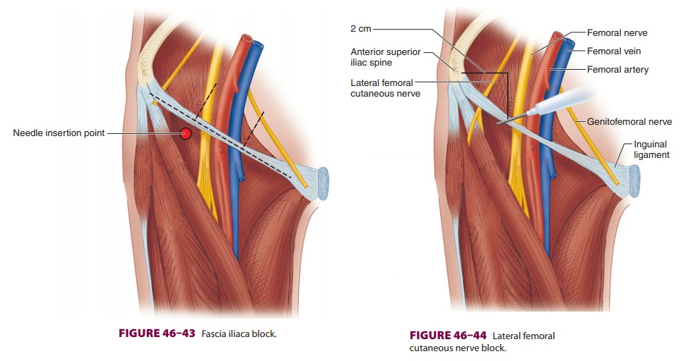 Lower Extremity Peripheral Nerve Blocks: Lateral Femoral Cutaneous Nerve Block