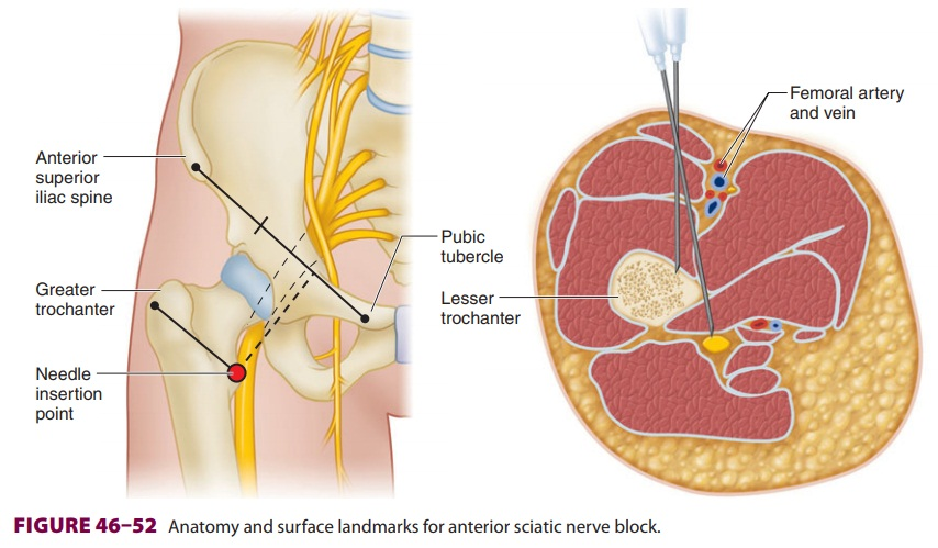 Lower Extremity Peripheral Nerve Blocks: Sciatic Nerve Block