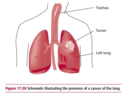 Lung Cancer: Classification, Treatment, Signs, symptoms, diagnosis and staging