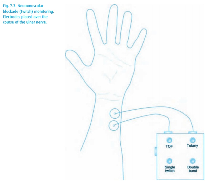 Neuromuscular function - Anesthesia Clinical management