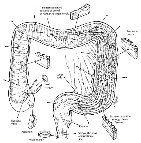 Non-Neoplastic Intestinal Disease: Surgical Pathology Dissection