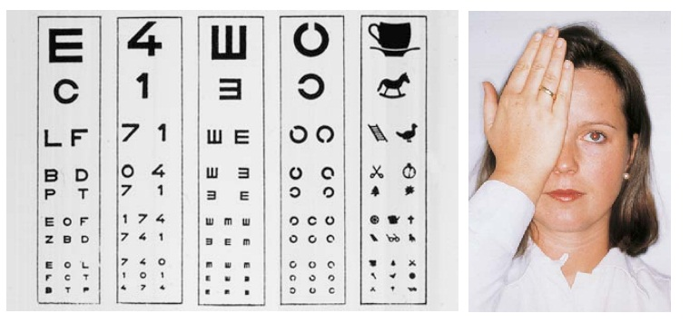 Ophthalmic Examination: Visual Acuity