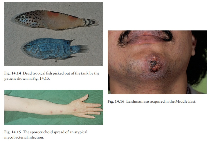 Other mycobacterial infections
