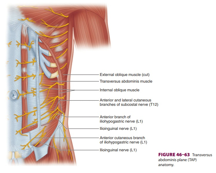 Peripheral Nerve Blocks of the Trunk: Transversus Abdominis Plane Block