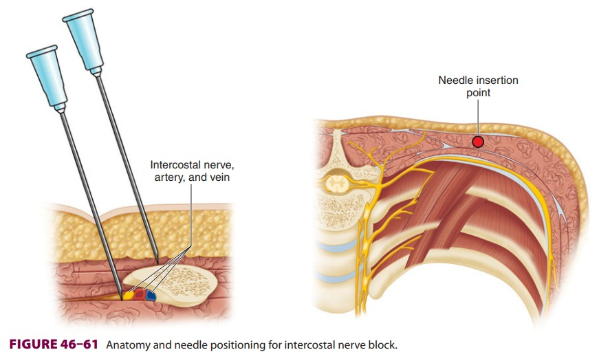 Peripheral Nerve Blocks of the Trunk: Intercostal Block
