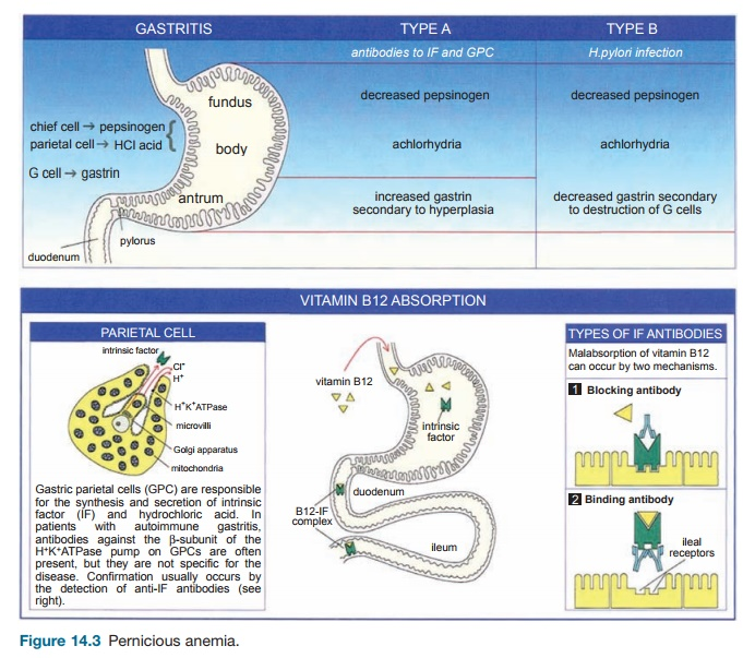 Pernicious Anemia - Immune Mediated Diseases of the Gastrointestinal Tract