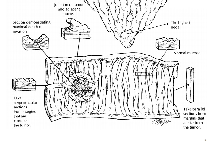 Polypectomies - Neoplastic Intestinal Disease: Surgical Pathology Dissection