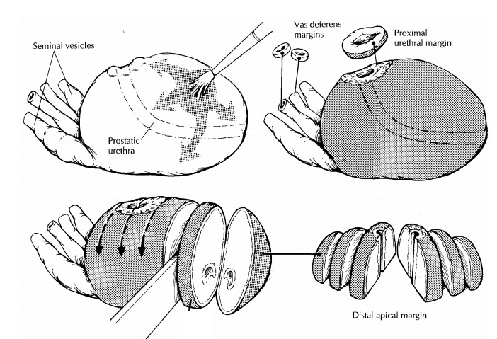 Prostate : Surgical Pathology Dissection