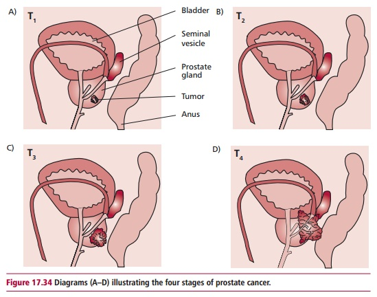 Prostate Cancer: Treatment, Signs, symptoms and staging