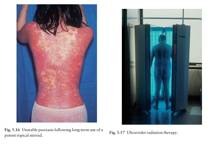 Psoriasis: Treatment