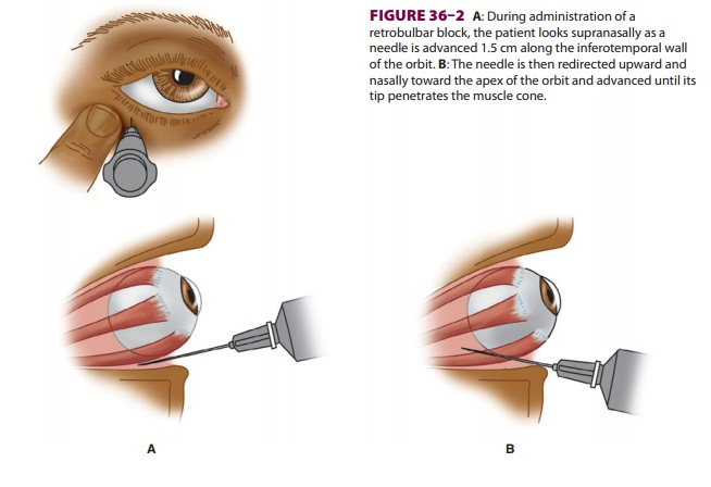 Regional Anesthesia for Ophthalmic Surgery