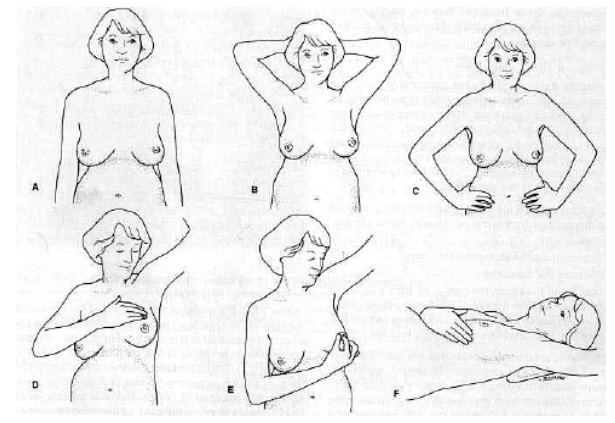 Self examination of the breast
