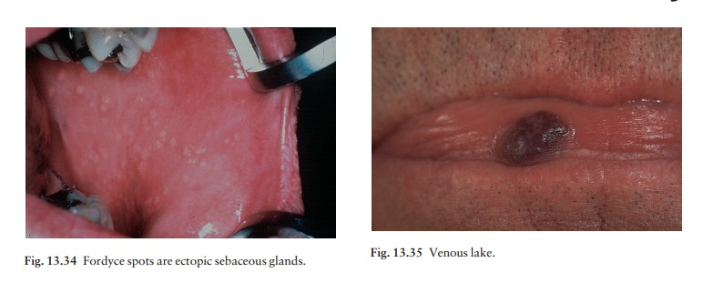 Some other oral lumps, bumps and colour changes