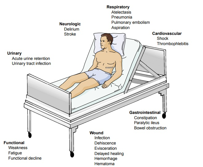 The Hospitalized Postoperative Patient