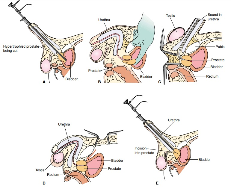 The Patient Undergoing Prostate Surgery