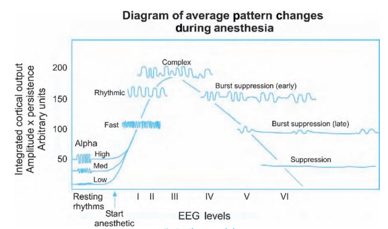The electroencephalogram and evoked responses - Anesthesia Clinical management