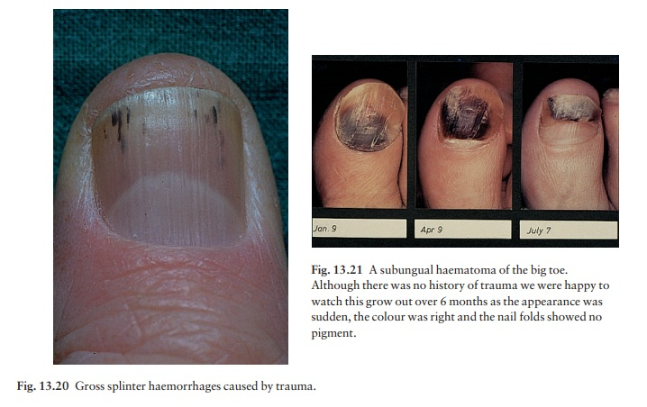 The nails: Effects of trauma