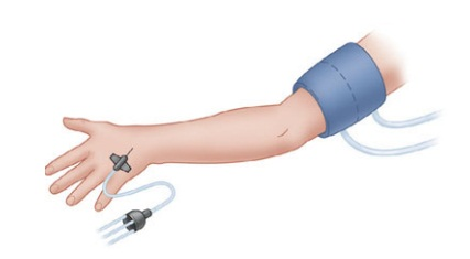 Upper Extremity Peripheral Nerve Blocks: Intravenous Regional Anesthesia