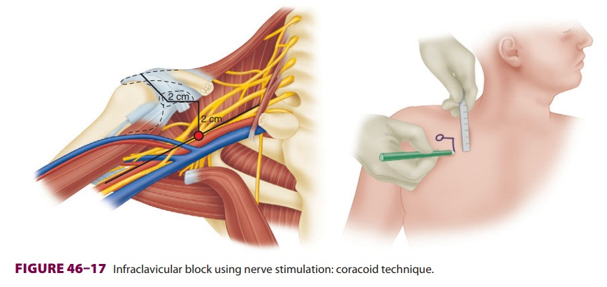 Upper Extremity Peripheral Nerve Blocks: Infraclavicular Block