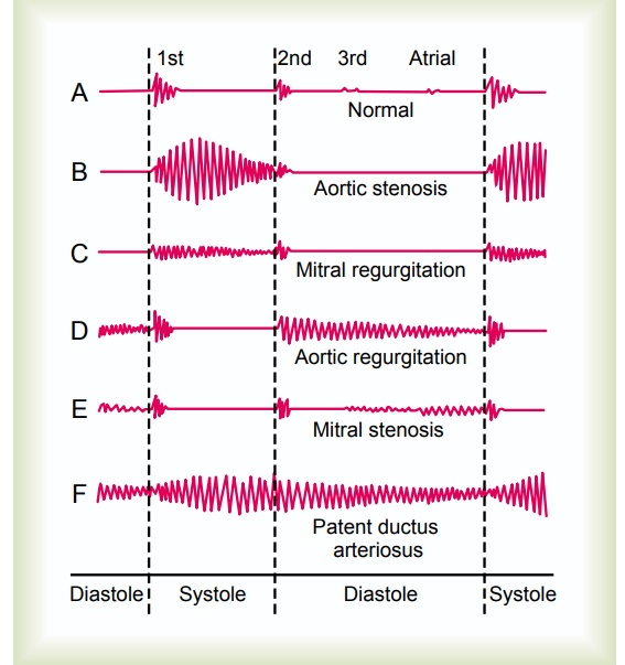 Valvular Lesions - Heart Sounds