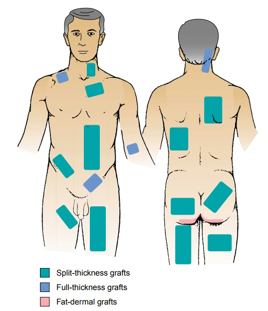 Wound Coverage: Grafts and Flaps