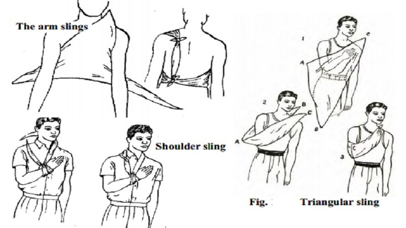 Uses Guidelines And Types Of Slings